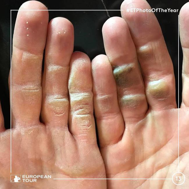 职业球员诺伦的双手
